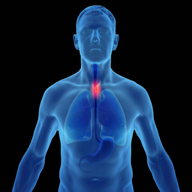 3d-illustration von speiseröhrenkrebs im menschlichen männchen - speiseröhre stock-fotos und bilder