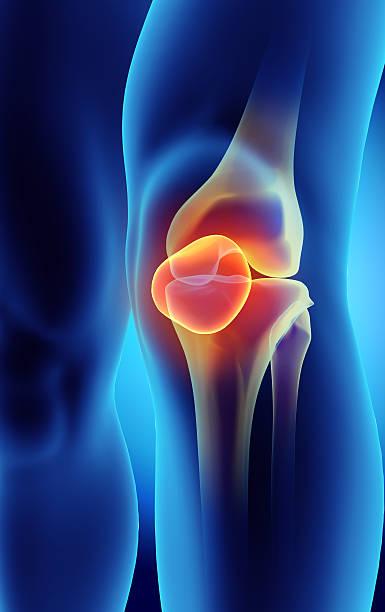 3d illustration of patella, medical concept. - knäskål bildbanksfoton och bilder