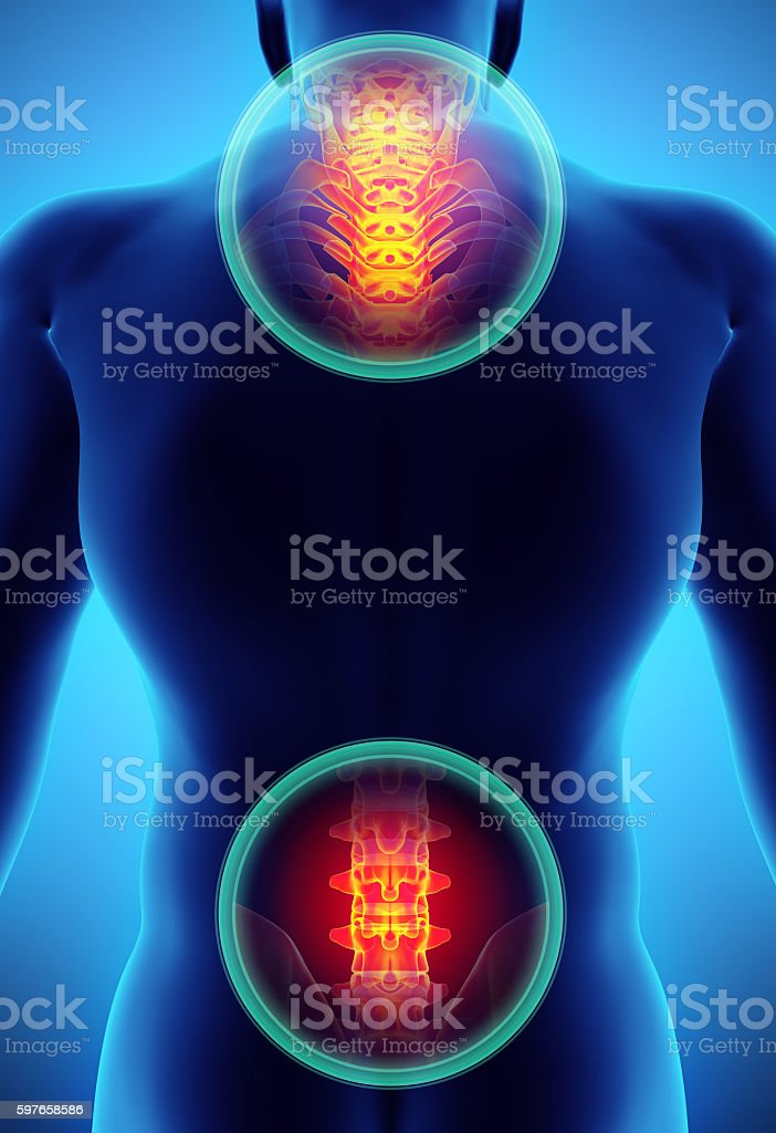 3D Illustration of sacral and cervical painful. stock photo