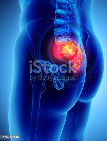 istock 3D illustration of Sacrum painful. 579769546