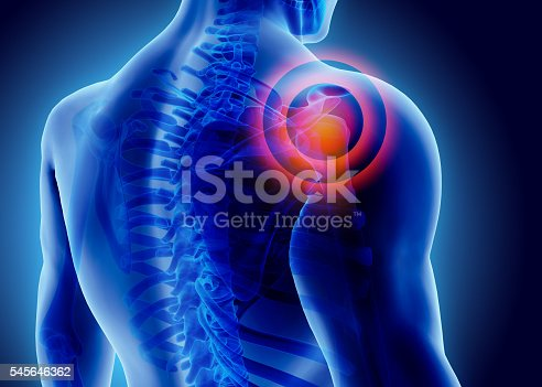 istock 3D Illustration of shoulder painful. 545646362