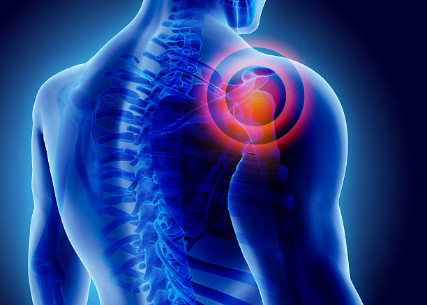 3D Illustration of shoulder painful. stock photo