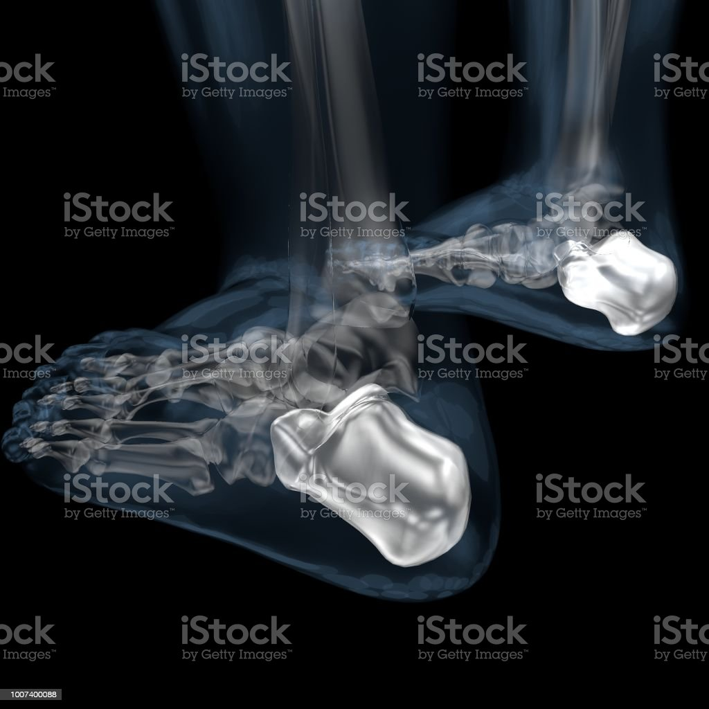 3d Illustration Of Skeletal Calcaneus Stock Photo & More Pictures of ...