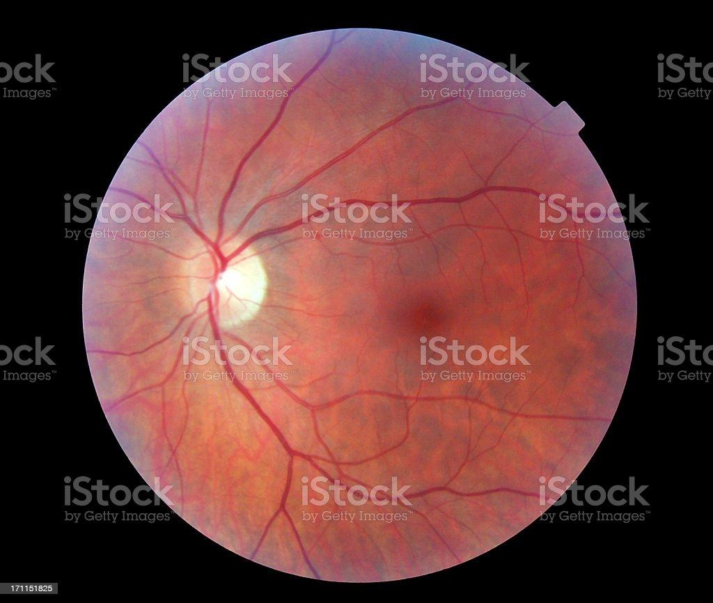 Image of a Human Retina royalty-free stock photo