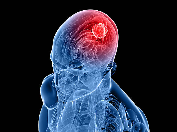 A 3-D image of a human skull and brain depicting cancer stock photo