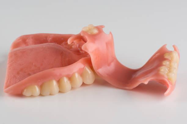 image of a modern denture nylone – zdjęcie