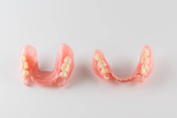 image of a modern denture on a white background – zdjęcie