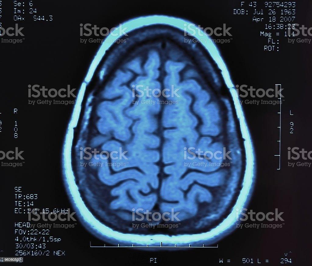 Image of brain MRI with some description in blue color stock photo