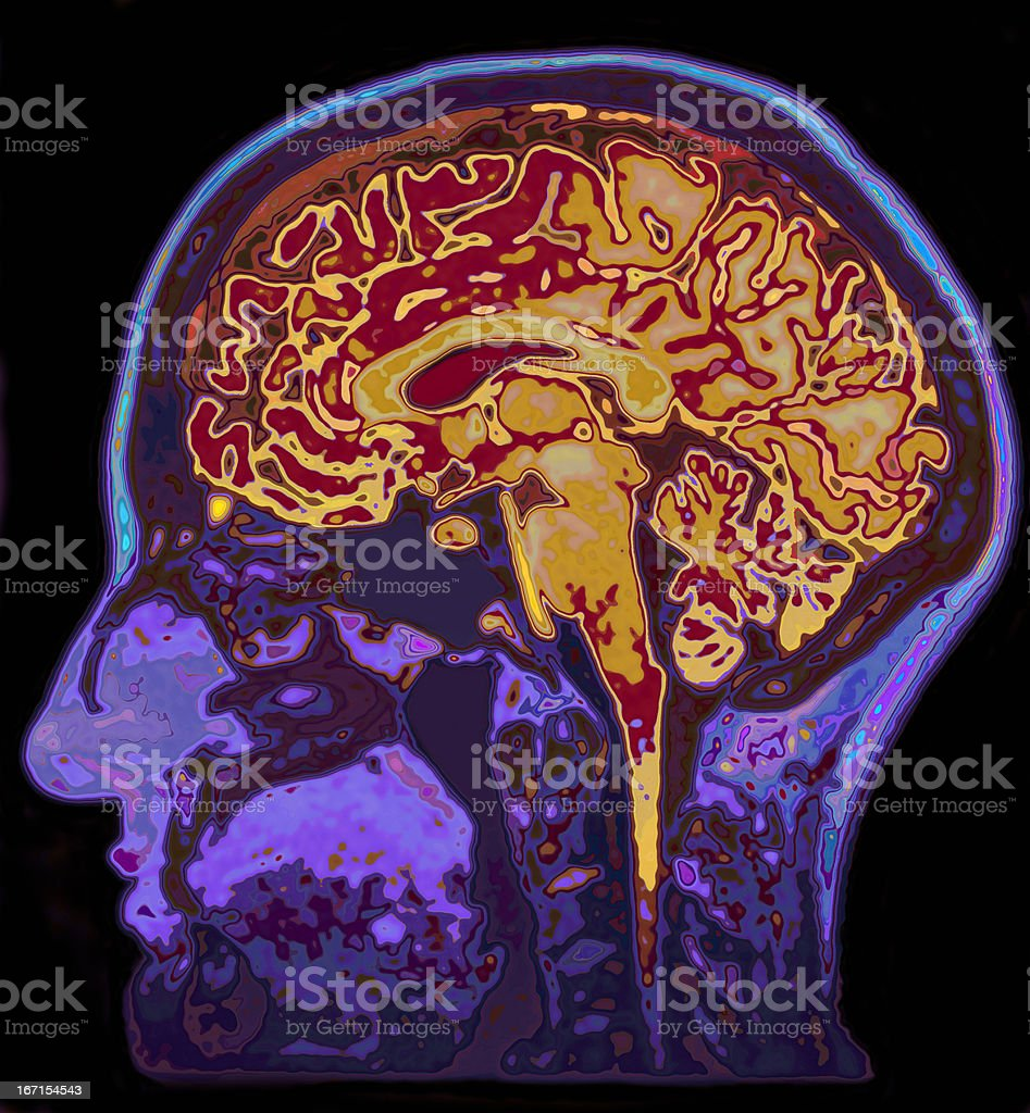 MRI Image Of Head Showing Brain stock photo