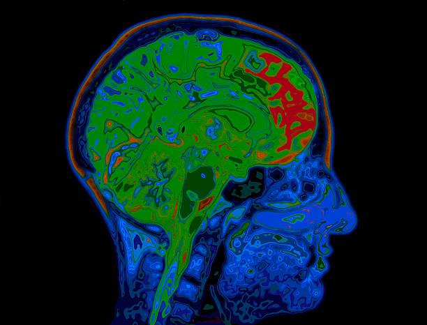 MRI Image Of Head Showing Brain stock photo