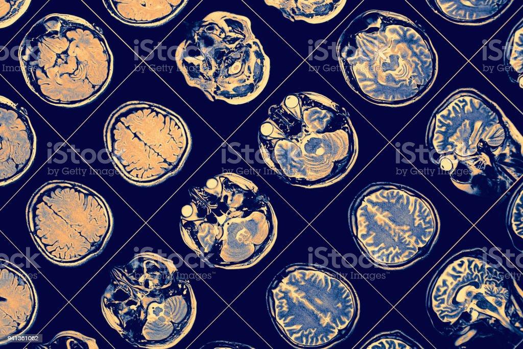 MR image of human brain. stock photo