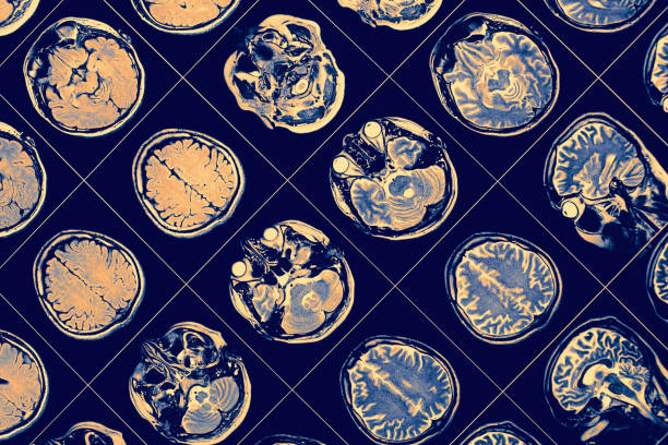 mr image of human brain. - alzheimer imagens e fotografias de stock