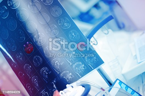 istock MRI image of human brain with red color marked focal lesion in the hospital room 1148594029