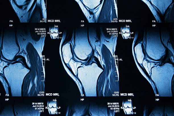 mri image of knee - human knee stock photos and pictures