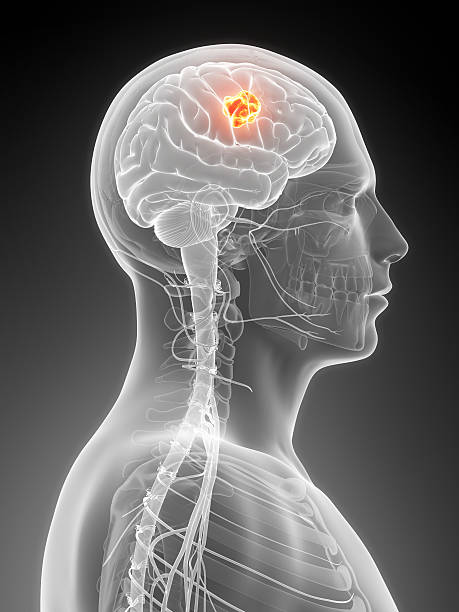 Image of male head with a red highlighted spot in brain stock photo