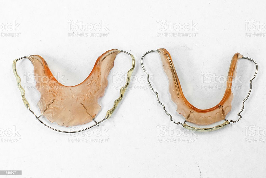 Image of teeth retainer royalty-free stock photo