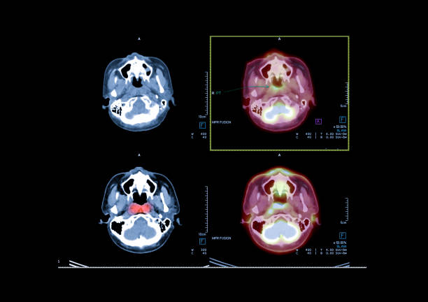 PET CT image of the brain showing CA nasopharynx or carcinoma of nasopharynx from PET CT scanner. PET CT image of the brain showing CA nasopharynx or carcinoma of nasopharynx from PET CT scanner. neuroscience patient stock pictures, royalty-free photos & images