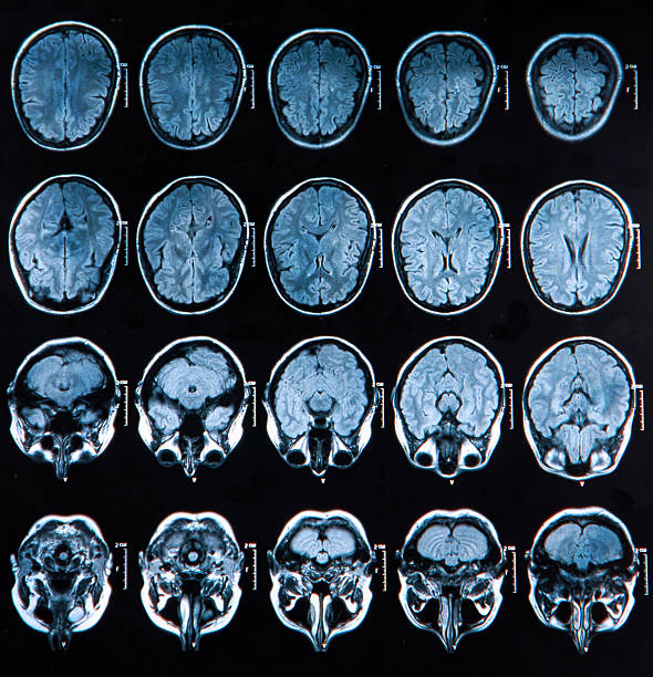 Images from an MRI scan of a brain MRI scan of the human brain lateral ventricle stock pictures, royalty-free photos & images