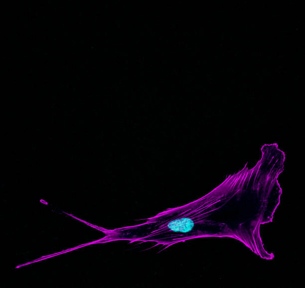 Immunofluorescence confocal imaging of a single invading metastatic prostate cancer cell sticking out protrusions with cytoskeleton in violet and nucleus in cyan stock photo