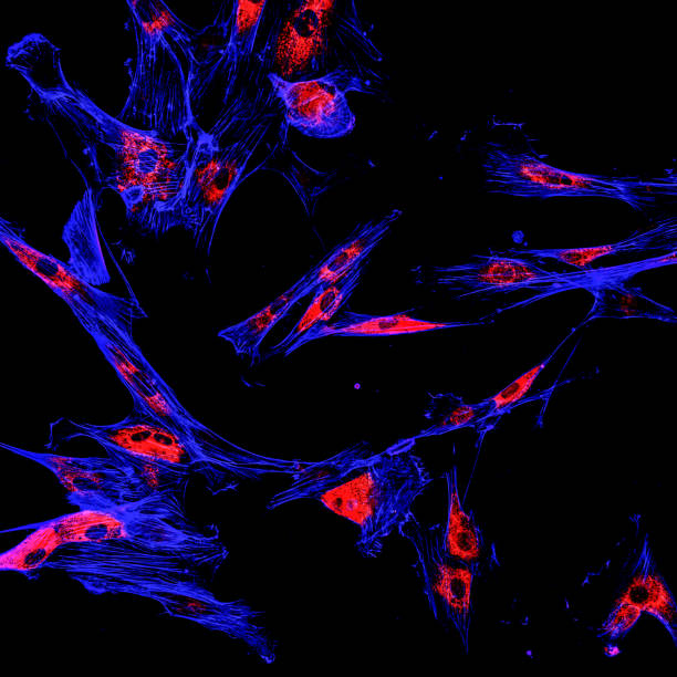 Immunofluorescence confocal imaging of melanoma cancer cells stock photo