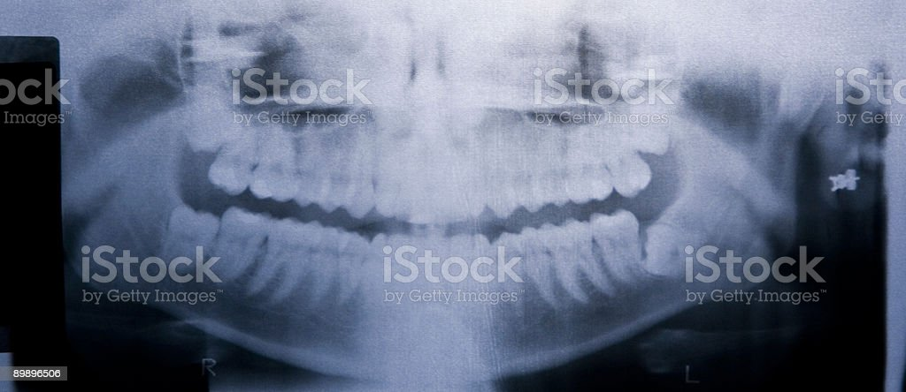 Impacted Wisdom Teeth On Xray Stock Photo - Download Image Now - iStock