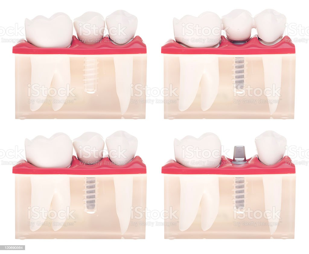 Implant dental model stock photo