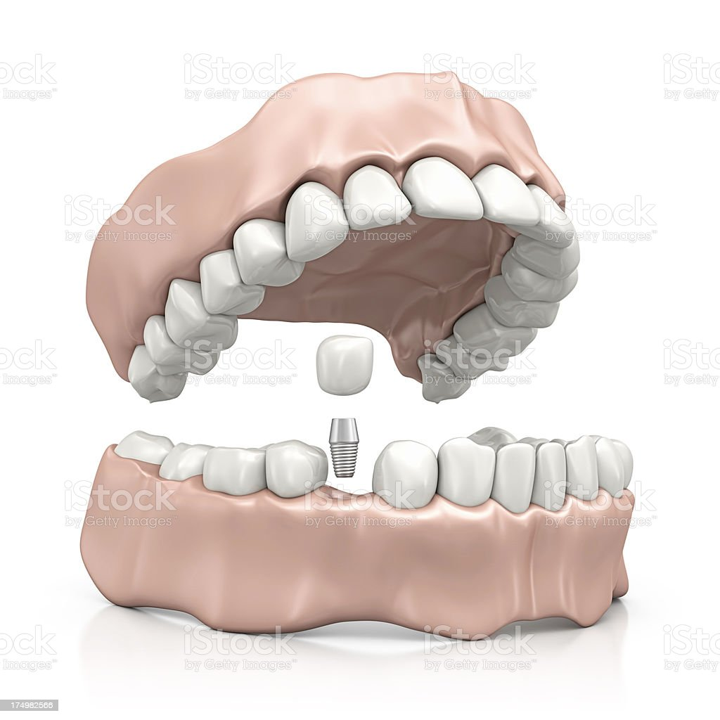 implant stock photo