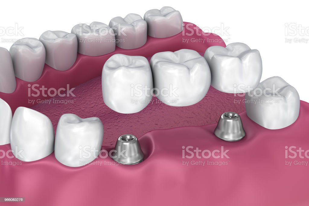 implant supported fixed bridge. Medically accurate 3D illustration - Royalty-free Artificial Stock Photo