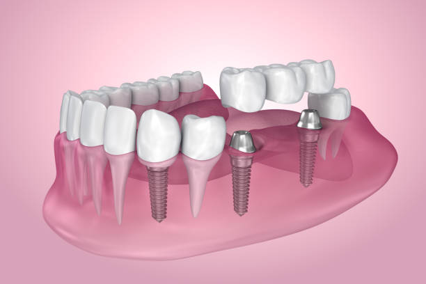 implant supported fixed bridge. transparent view . medically accurate 3d illustration - dental implants stock photos and pictures