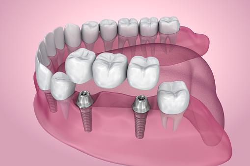 Implantatet Stöds Fasta Bron Transparent Vy Medicinskt Korrekt 3d Illustration-foton och fler bilder på Artificiell