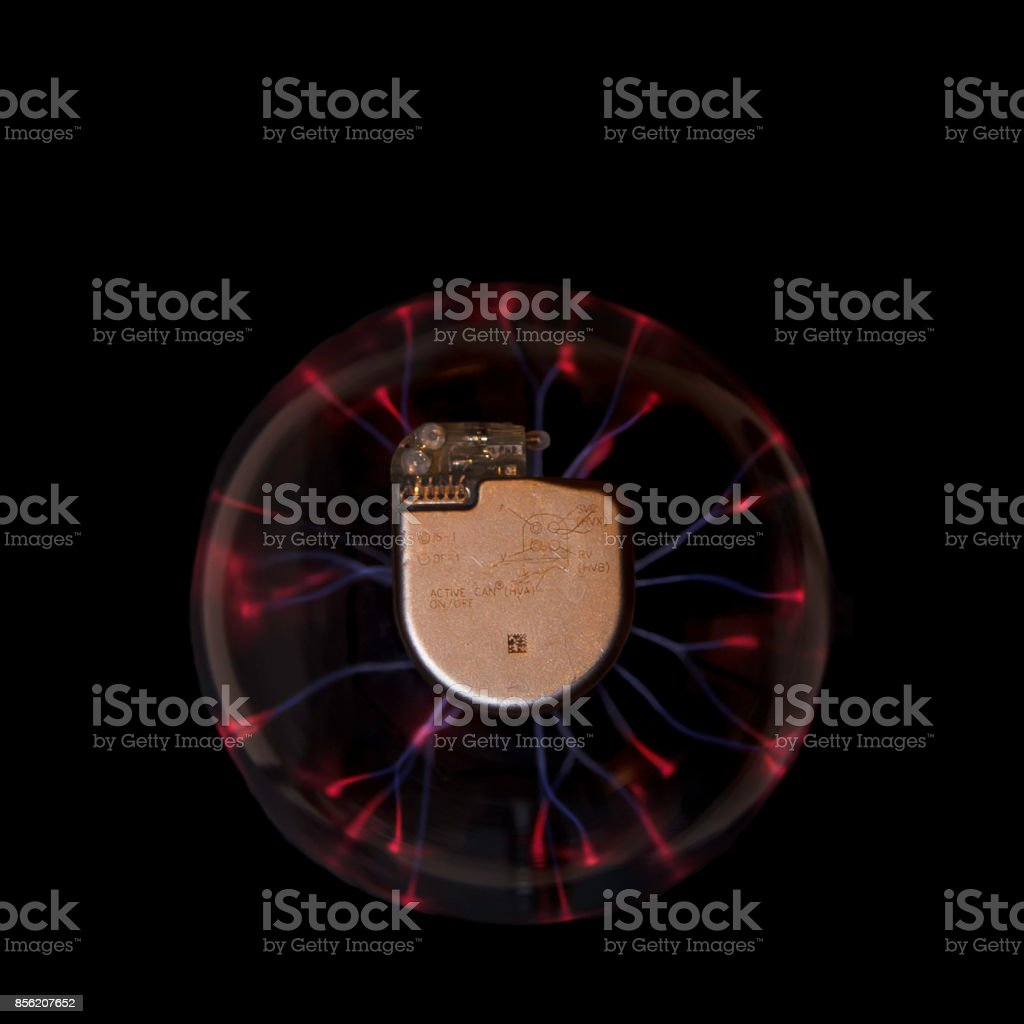 Implanteerbare cardioverter-defibrillator foto