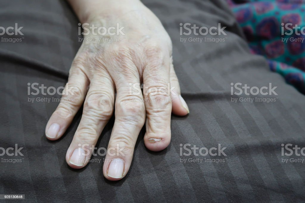 Index finger was cut off from accident stock photo