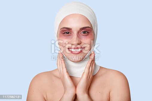 istock Indoor shot of cheerful patient being satisfied after cosmetic procedures for appearance improvement , has bruises under eyes, touches cheeks with charming smile, stands against blue studio wall. 1172562131