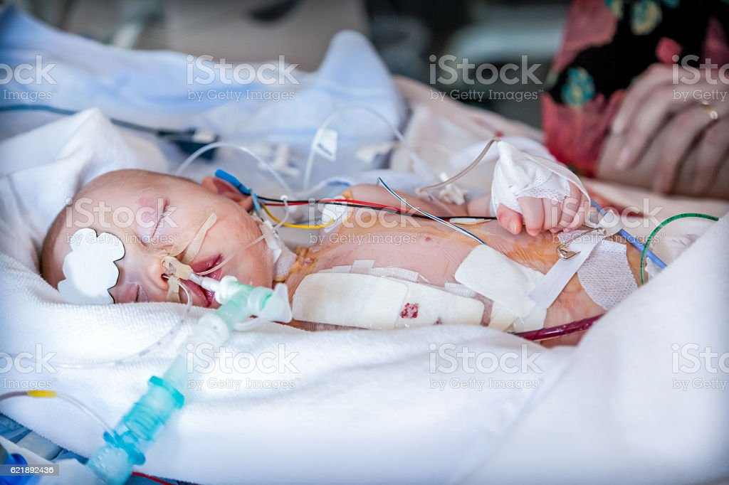Infant, child in intensive care unit after heart surgery. stock photo