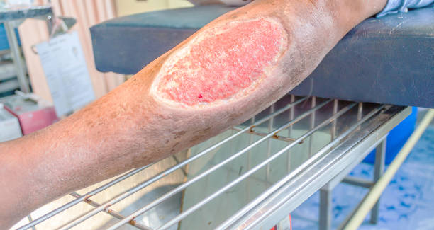 infected wound leg - open wounds stock photos and pictures