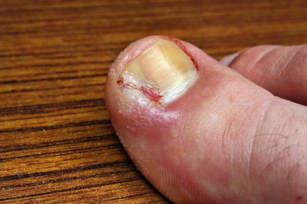infection in the nail toe - disfigure stock pictures, royalty-free photos & images