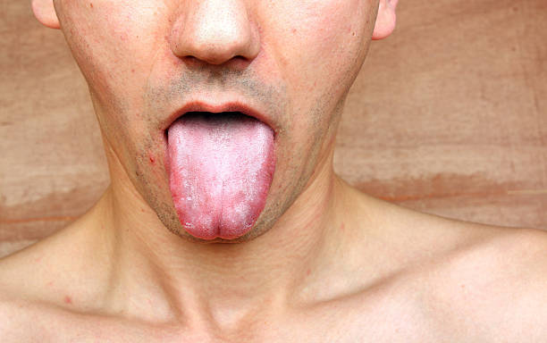 Infection tongue Disease infection tongue, throat a man treponema pallidum stock pictures, royalty-free photos & images