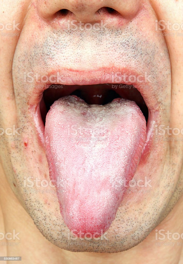 Infection Tongue Stock Photo & More Pictures of Adult | iStock