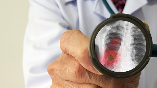 Infectious Doctor Exam And Screening For Virus That Cause Mysterious Viral Pneumonia In China Pandemic Disease Concept Stock Photo - Download Image Now