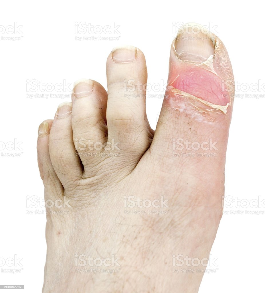 Inflamed Gout Toe stock photo