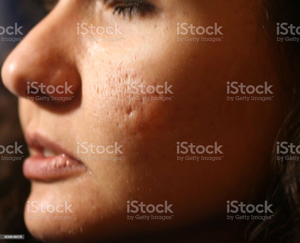 Inflamed skin of the face in pimples and acne. Keloid scars from acne stock photo