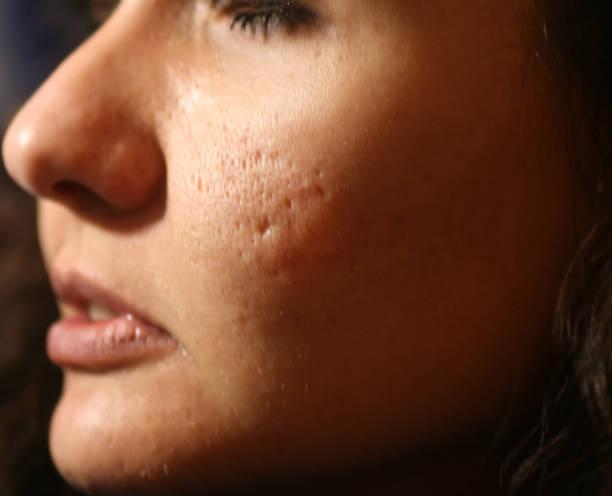 にきびやにきびの顔の皮膚の炎症を起こします。ニキビからケロイド ストックフォト