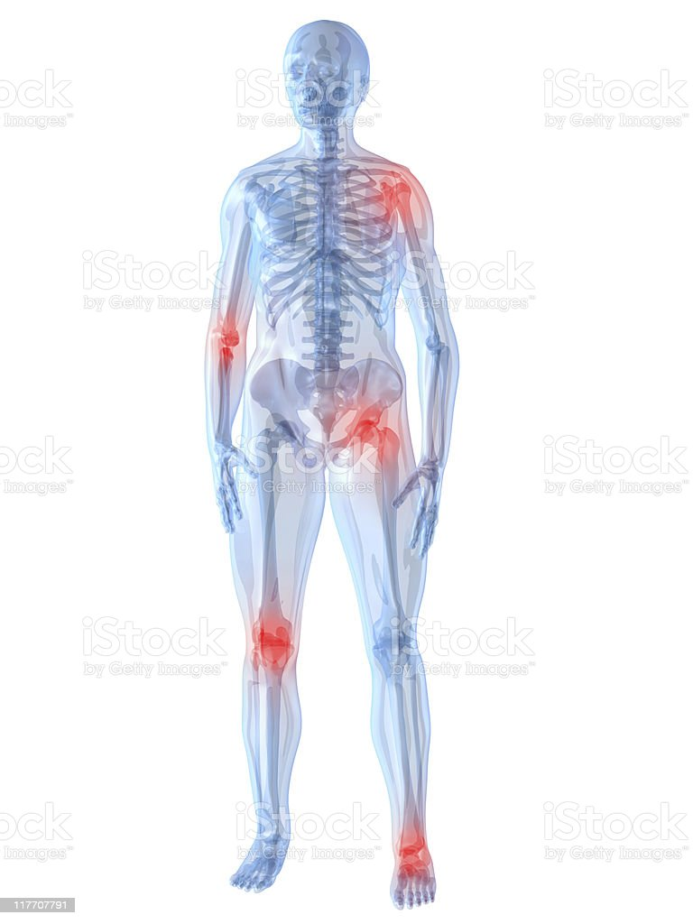 inflammated joints stock photo