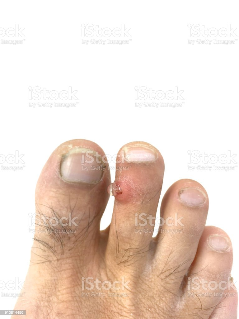 Inflammation Infection And Pus On The Toe Stock Photo & More ...