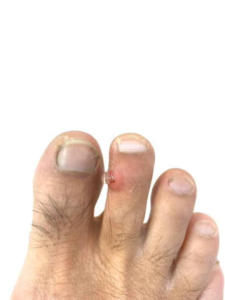 inflammation, infection et pus sur l'orteil. - verrue pied photos et images de collection