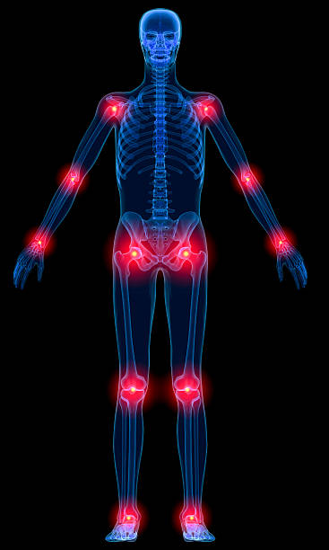 Inflammation of joints stock photo