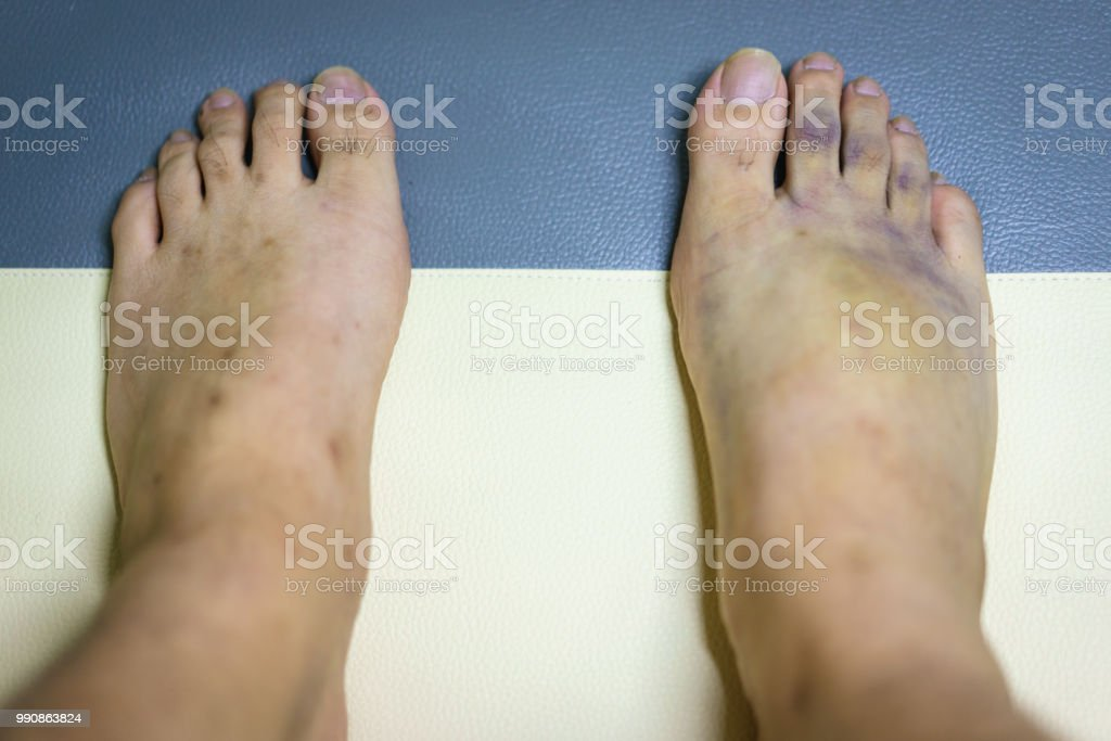Inflammation, swelling and bruise on top of foot, medication, accidents, insurance concepts. stock photo