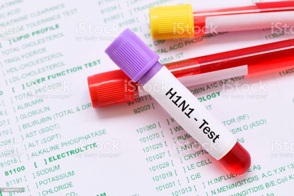 H1N1 influenza virus test stock photo
