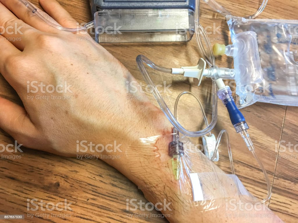 infusion stock photo