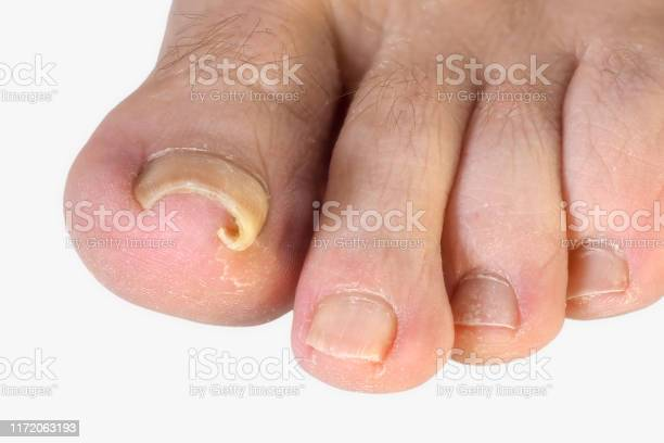 A mild case of ingrowing toenail, with the curve of the nail growing into the toe.